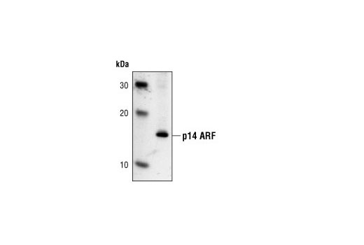 Western blot analysis of HeLa cell lysate using p14 ARF (4C6/4) Mouse mAb.
