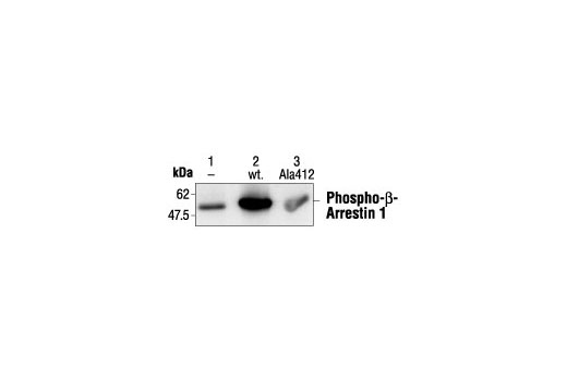 Monoclonal Antibody Immunoprecipitation beta1