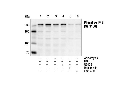 Western blot analysis of extracts from PC12 cells, untreated (lane 1), NGF-treated (10 ng/ml) (lane 2), anisomycin-treated (25 µM) (lane 3), U0126-treated #9903 (10 µM) (lane 4), Rapamycin-treated #9904 (100 nM ) (lane 5) or LY294002-treated #9901 (25 µM) (lane 6), using Phospho-eIF4G (Ser1108) Antibody.