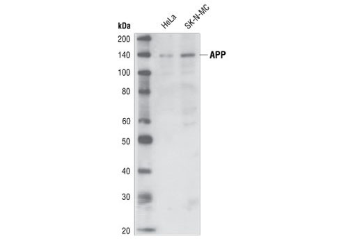 Western blot analysis of extracts from HeLa and SK-N-MC cells, using APP/beta-Amyloid (NAB228) Mouse mAb.