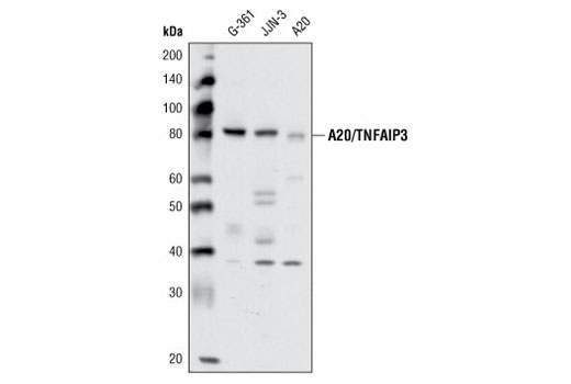 Western blot analysis of extracts from G-361, JJN-3, and A20 cell lines using A20/TNFAIP3 (D13H3) Rabbit mAb.