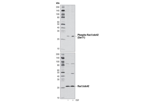 Western blot analysis of A431 cell extracts, untreated (-) or EGF treated (+), using Phospho-Rac1/cdc42 (Ser71) Antibody (upper) or Rac1/Cdc42 Antibody #4651 (lower).