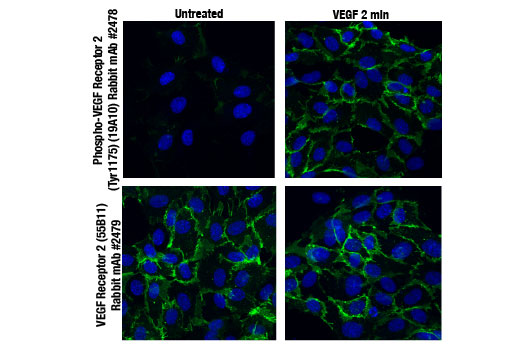 Confocal immunofluorescent images of HUVE cells untreated (left) or stimulated with Vascular Endothelial Growth Factor (VEGF) #9943 (right) and labeled with Phospho-VEGF Receptor 2 (Tyr1175) (19A10) Rabbit mAb (top, green) and VEGF Receptor 2 (55B11) Rabbit mAb #2479 (bottom, green). Blue pseudocolor = DRAQ5<sup>®</sup> #4084 (fluorescent DNA dye).