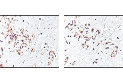 Immunohistochemical analysis of paraffin-embedded breast angiosarcoma, using VEGF Receptor 2 (55B11) Rabbit mAb (left). A serial section is stained for CD31 (PECAM-1), an endothelial cell marker (right).