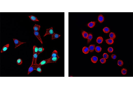 Confocal immunofluorescent analysis of INS-1 cells (left) and KNRK cells (right) using Pdx1 (D59H3) XP<sup>®</sup> Rabbit mAb (green). Actin filaments were labeled with DY-554 phalloidin (red). Blue pseudocolor = DRAQ5<sup>®</sup> #4084 (fluorescent DNA dye).