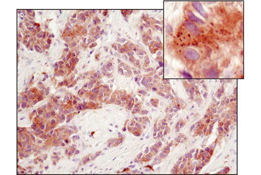 Immunohistochemical analysis of paraffin-embedded human breast carcinoma using PERK (D11A8) Rabbit mAb.