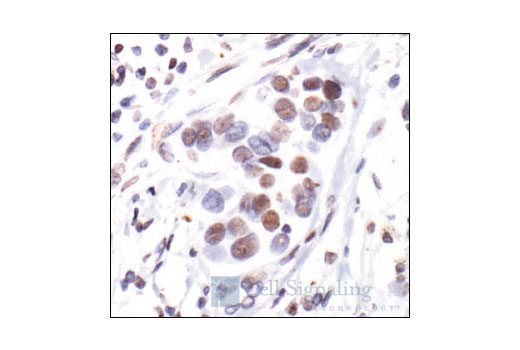 Immunohistochemical staining of phosphorylated estrogen receptor alpha in paraffin-embedded human breast carcinoma showing nuclear localization, using Phospho-Estrogen Receptor alpha (Ser118) (16J4) Mouse mAb.