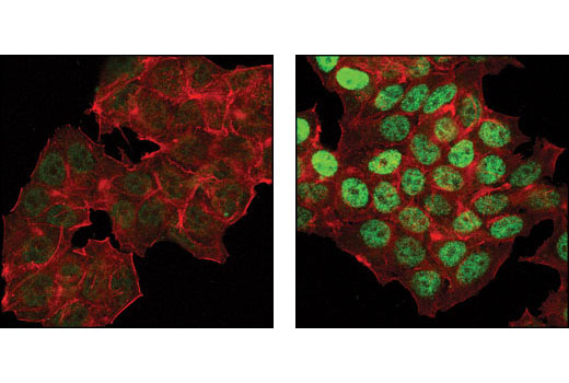 Confocal immunofluorescent analysis of MCF-7 cells, untreated (left) or etoposide-treated (right), using Phospho-p53 (Ser46) Antibody (green). Actin filaments have been labeled with DY-554 phalloidin (red).