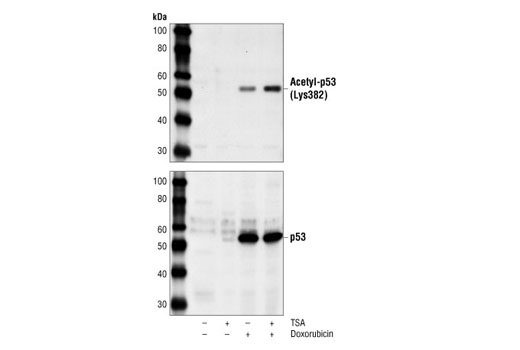 Polyclonal Antibody Western Blotting Mitochondrial Dna Repair