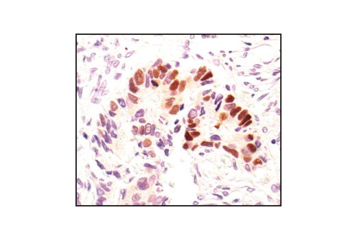 Immunohistochemical analysis of paraffin-embedded human colon carcinoma, showing nuclear localization, using Phospho-p53 (Ser33) Antibody.