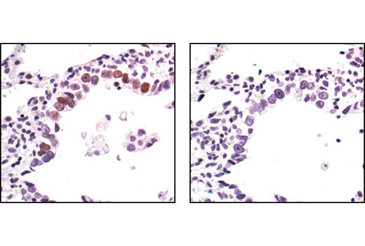 Immunohistochemical analysis of paraffin-embedded human lung dysplasia of alveolar cells, using Phospho-p53 (Ser33) Antibody in the presence of control peptide (left) or antigen specific peptide (right),