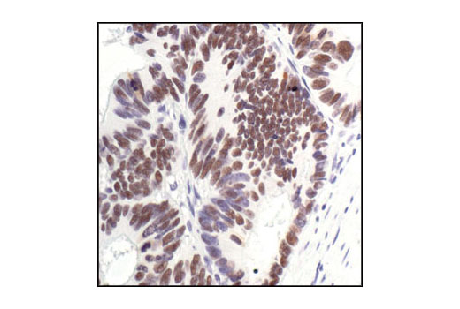Immunohistochemical analysis of paraffin-embedded human colon carcinoma, using p53 (7F5) Rabbit mAb.