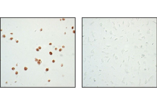 Immunohistochemical analysis of paraffin-embedded HT-29 (left) and SaOs-2 (right) cells, using p53 (7F5) Rabbit mAb.  Note the lack of staining in p53-negative SaOs-2 cells.