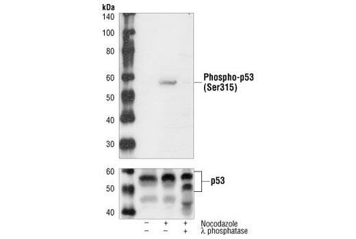 Polyclonal Antibody Western Blotting Embryonic Organ Development