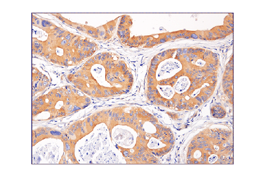 Immunohistochemical analysis of paraffin-embedded human colon carcinoma using Phospho-AMPKα (Thr172) (40H9) Rabbit mAb.
