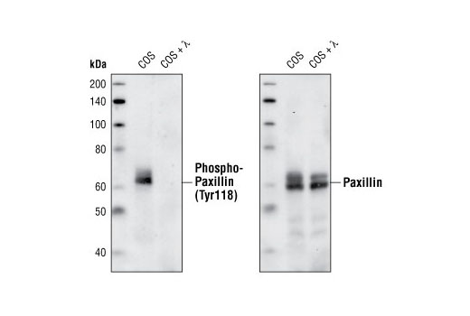 Western blot analysis of untreated and lambda-phosphatase treated COS cells, using Phospho-Paxillin (Tyr118) Antibody (left) and Paxillin Antibody #2542 (right).