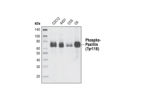 Western blot analysis of extracts from various cell lines using Phospho-Paxillin (Tyr118) Antibody.