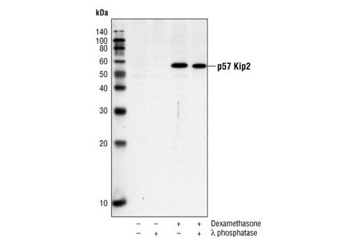 Western blot analysis of extracts from HeLa cells, untreated or treated with dexamethasone (50 nM, 16h) alone or with λ phosphatase, using p57 Kip2 Antibody #2557.