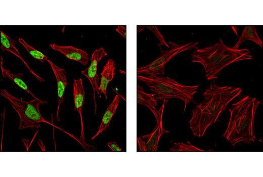Confocal immunofluorescent analysis of HeLa cells, dexamethasone-treated (left) or phosphatase-treated (right), labeled with Phospho-p57 Kip2 (Thr310) Antibody (green). Actin filaments have been labeled with Alexa Fluor® 555 phalloidin (red).