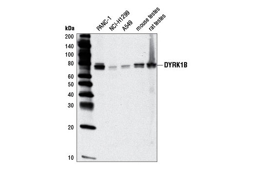 Western blot analysis of extracts from various cell lines and tissues using DYRK1B (D40D1) Rabbit mAb.
