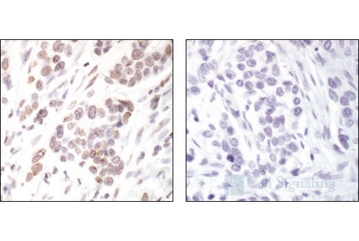 Immunohistochemical staining of paraffin-embedded human breast carcinoma, showing nuclear localization of histone H2B, using Acetyl-Histone H2B (Lys20) Antibody (left), or the same antibody preincubated with specific acetyl histone H2B peptide (right).