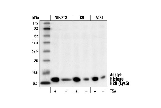 Polyclonal Antibody - Acetyl-Histone H2B (Lys5) Antibody, UniProt ID P33778, Entrez ID 3018 #2574 - Primary Antibodies