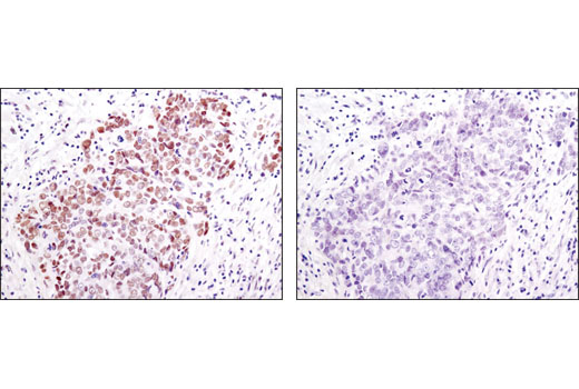 Immunohistochemical analysis of paraffin-embedded human lung carcinoma using Acetyl-Histone H2B (K5) Rabbit Antibody in the presence of non-acetyl peptide (left) or K5 acetyl-peptide (right).