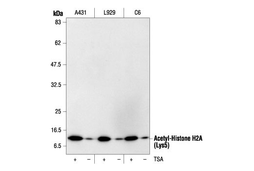 Western Blotting Image 4 - Acetyl-Histone Antibody Sampler Kit