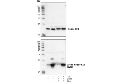 Western blot analysis of extracts from NIH/3T3 cells, untreated or treated with TSA, serum or Calyculin A as indicated using Histone H2A Antibody II (upper) or Acetyl-Histone H2A (Lys5) Antibody #2576 (lower).