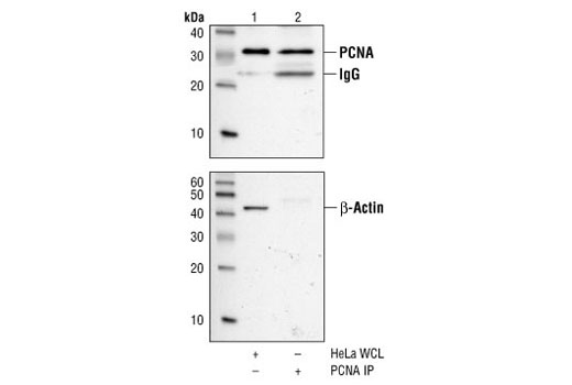 Western blot analysis, using PCNA (PC10) Mouse mAb (upper) and Beta-Actin Antibody #4967(lower), of HeLa cell extract (lane 1) and PCNA immunoprecipitated from the same extract using PCNA (PC10) Mouse mAb (lane 2).