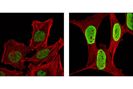 Confocal immunofluorescent analysis of HeLa cells, untreated (left) or TSA-treated (right), using Acetyl-Histone H4 (Lys12) Antibody (green). Actin filaments have been labled with DY-554 phalloidin (red).