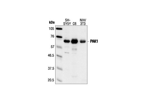 Western blot analysis of extracts from SH-SY5Y, C6 and NIH/3T3 cells, using PAK1 Antibody.