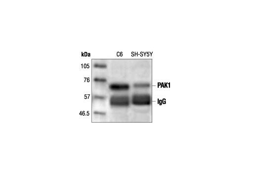 Immunoprecipitation of PAK1 from C6 and SH-SY5Y cells followed by Western blot analysis, using PAK1 Antibody.