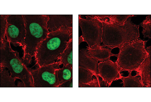 Confocal immunofluorescent analysis of HT-1080 cells, untreated (left) and phosphatase-treated (right), using Phospho-SirT1 (Ser47) Antibody (green). Actin filaments have been labeled using DY-554 phalloidin (red).