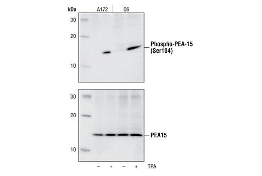 Polyclonal Antibody - Phospho-PEA-15 (Ser104) Antibody - Western Blotting, UniProt ID Q15121, Entrez ID 8682 #2776, Apoptosis