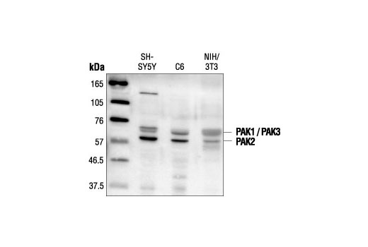 Western blot analysis of extracts from SH-SY5Y, C6 and NIH/3T3 cells, using PAK1/2/3 Antibody.