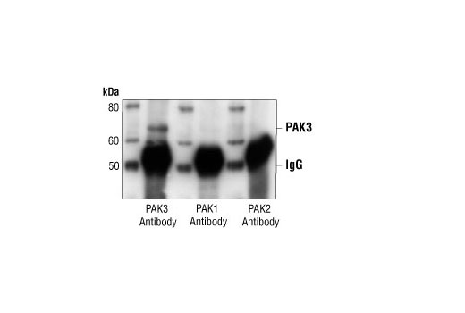 Immunoprecipitation of PAK3 from mouse brain extract, using PAK3 Antibody, followed by Western blot analysis using PAK3 Antibody (left), PAK1 Antibody #2602 (middle) or PAK2 Antibody #2608 (right).