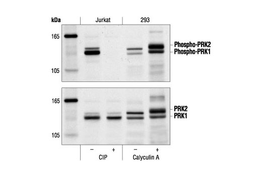 Western blot analysis of extracts from Jurkat cells, untreated or calf intestinal alkaline phosphotase (CIP)-treated, and 293 cells, untreated or calyculin A-treated, using Phospho-PRK1 (Thr774)/PRK2 (Thr816) Antibody (upper) or PRK1/PRK2 antibody (lower).