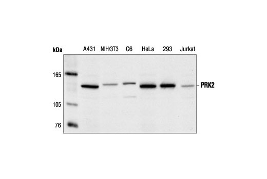 Polyclonal Antibody - PRK2 Antibody - Immunoprecipitation, Western Blotting, UniProt ID Q16513, Entrez ID 5586 #2612