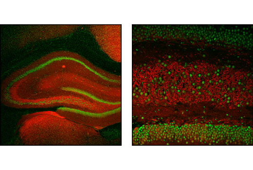Confocal immunofluorescence images of rat hippocampus labeled with α/β-Synuclein (Syn205) Mouse mAb (red) and CREB (48H2) Rabbit mAb #9197 (green).