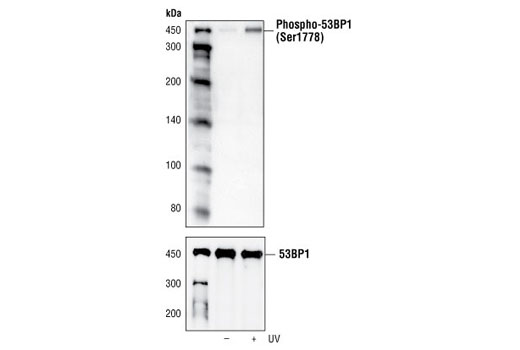 Western blot analysis of extracts from 293 cells, untreated or UV-treated (50 mJ for 2 hours), using Phospho-53BP1 (Ser1778) Antibody (upper) or 53BP1 Antibody #4937 (lower).