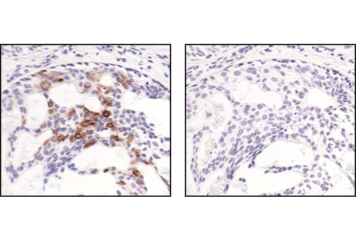 Image 19: NF-κB Non-Canonical Pathway Antibody Sampler Kit