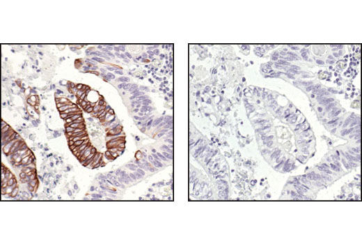 Immunohistochemical analysis of paraffin-embedded human colon carcinoma, untreated (left) or λ phosphatase-treated (right), using Phospho-IKKα/β (Ser176/180) (16A6) Rabbit mAb.