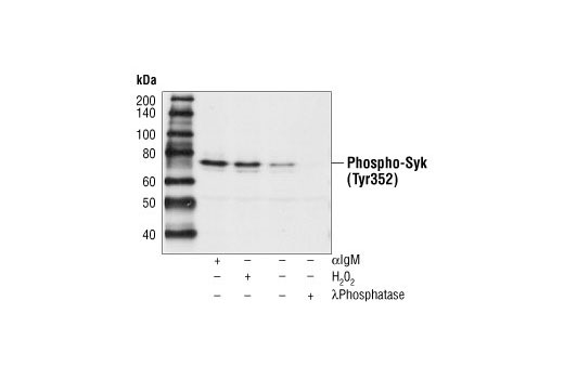 Western blot analysis of extracts from Ramos cells, untreated or treated with anti-IgM (12 µg/ ml for 2 minutes), hydrogen peroxide (10 mM for 2 minutes) or lambda phosphatase, using Phospho-Zap-70 (Tyr319)/ Syk (Tyr352) Antibody.