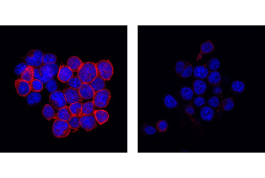 Immunofluorescent analysis of Jurkat cells, CD3-treated (left) or untreated (right), using Phospho-Zap-70 (Tyr319)/Syk (Tyr352) Antibody (red). Blue pseudocolor = DRAQ5™ (fluorescent DNA dye).