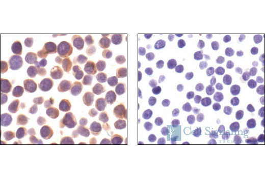 Immunohistochemical analysis of paraffin-embedded Jurkat T cells (left) and Ramos B cells (right), using Zap-70 (99F2) Rabbit mAb.