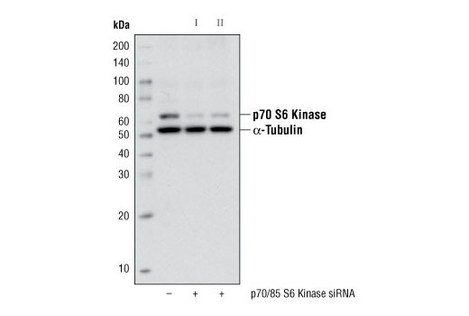 Western Blotting Image 2: p70 S6 Kinase (49D7) Rabbit mAb