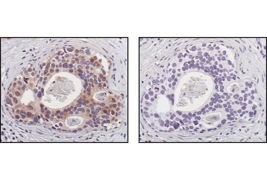 Immunohistochemical analysis of paraffin-embedded human breast carcinoma, using p70 S6 Kinase (49D7) Rabbit mAb in the presence of control peptide (left) or p70 S6 Kinase Blocking Peptide #1205 (right).