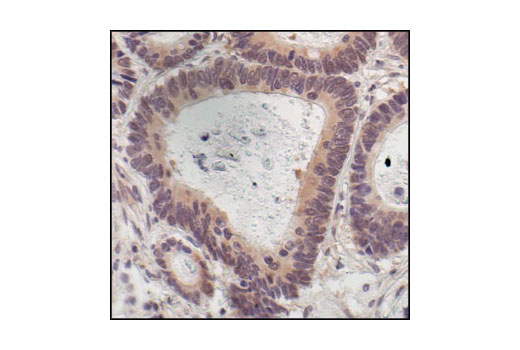 Immunohistochemistry Image 1: p70 S6 Kinase (49D7) Rabbit mAb