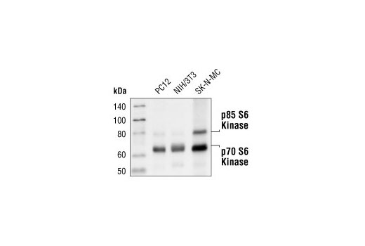 Western blot analysis of extracts from PC12, NIH/3T3, and SK-N-MC cells, using p70 S6 Kinase (49D7) Rabbit mAb.